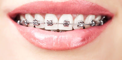 brace treatment